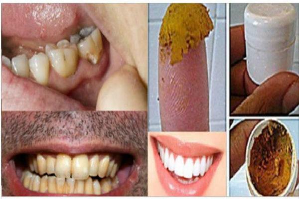 იმკურნალეთ კარიესზე, ღრძილების დაავადებაზე და გაითეთრეთ კბილები ამ საოცარი სამკურნალო საშუალებიის დახმარებით