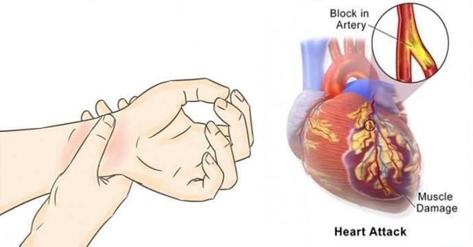 გულის შეტევათა 80%-ის თავიდან აცილება შეიძლება თუ ყოველდღიურად ამ მარტივ 5 მეთოდს მიმართავთ!
