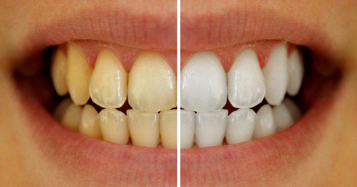5 გზა თუ როგორ აიცილოთ თავიდან კბილების ფერის ცვლილება და როგორ მოიშოროთ მოწევისგან დატოვებული ლაქები ნატურალურად.