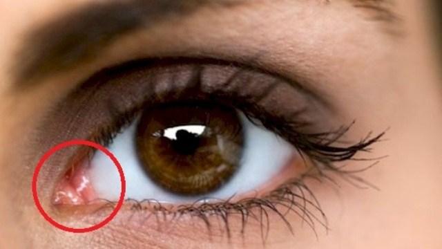 სავარაუდოდ არ იცოდით, რატომ გაქვთ თვალებთან ვარდისფერი წრე. პასუხით გაოცდებით!