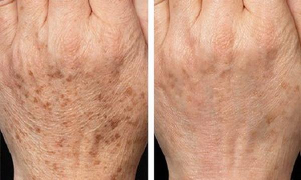აი, როგორ შევძელი ხელებიდან მუქი ლაქების  მოშორება! კანის მოვლისთვის საჭირო რჩევები!